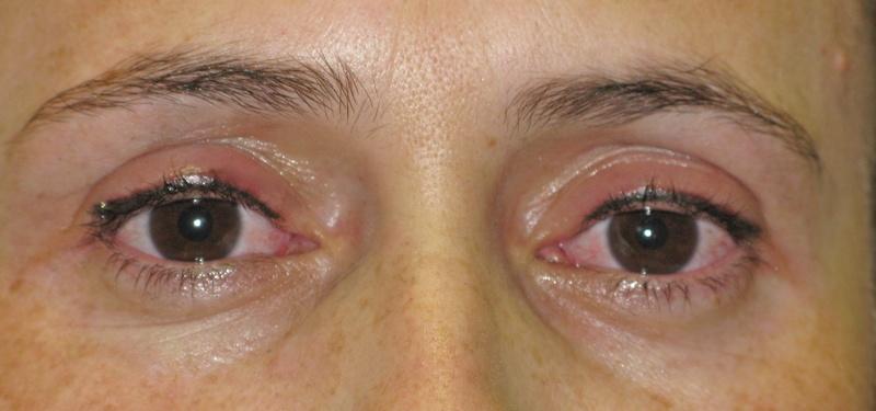 Upper Eyeliner After