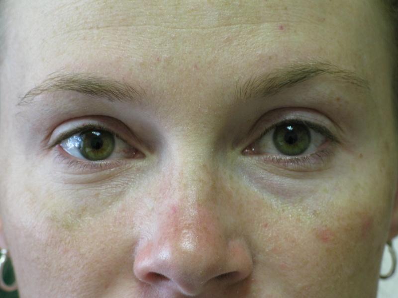 Eyeliner Before