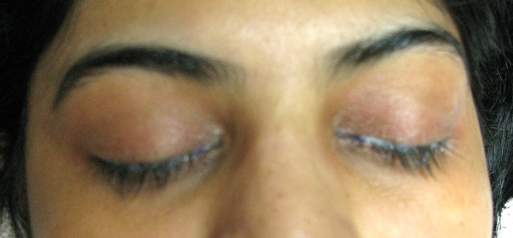 Eyeliner Before with Numbing Cream