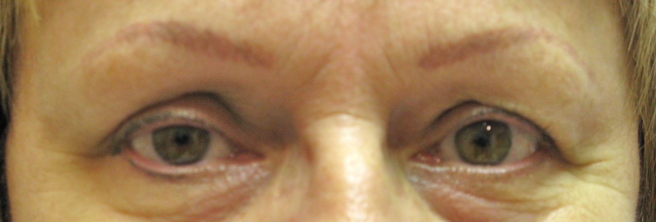 Eyeliner  and Brow Before