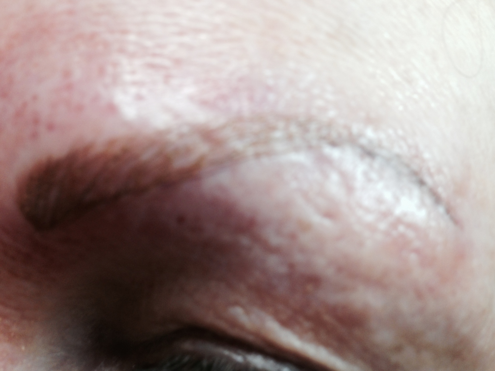 Eyebrow After